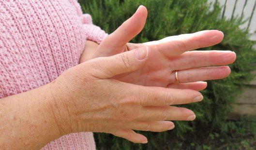 KL hands 1